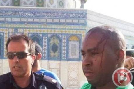 gewonde Al Aqsa