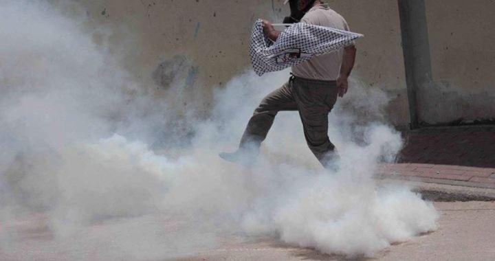 Injured Palestinian Silwan clashes