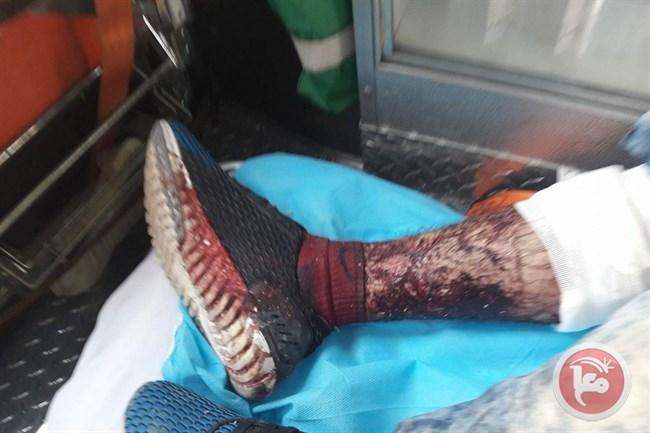 Pal man injured