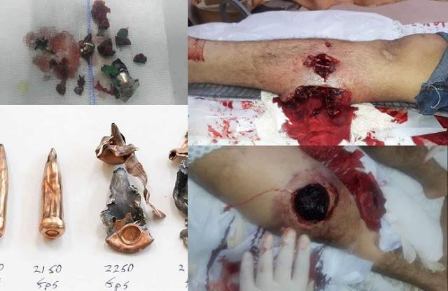 Gaza-bulletwounds-gedraaid